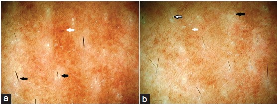 Figure 1: (a) Dermoscopy from forehead area with photomelanosis showing reticular hyperpigmentation in the interfollicular regions (white arrow) and perifollicular depigmentation (black arrows) (original magnification, ×250), (b) Repeat dermoscopy from the same area showing reduction in hyperpigmentation in the interfollicular regions (solid white arrow), leukotrichia (solid black arrow) and rarefaction and pigment reduction in other hair shafts (solid white arrow with black outline). Perifollicular depigmentation has widened (original magnification, ×250)