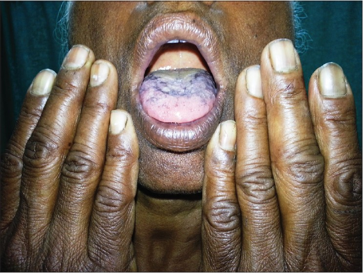 Figure 1: Diffuse widespread pigmentation over dorsum of tongue and longitudinal melanonychia of fi nger nails