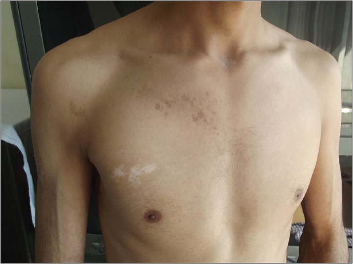 Figure 2: Segmental vitiligo with segmental lichen planus pigmentosus