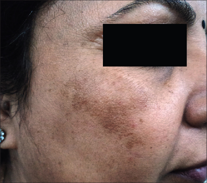 Figure 2: Malar melasma over the right side of the face of a lady