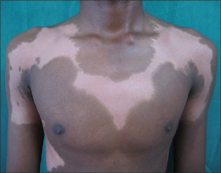 Figure 1: Vitiligo involving the front of chest, extending onto the anterior aspect of both arms in a broad Blaschkoid pattern along with multiple follicular papules