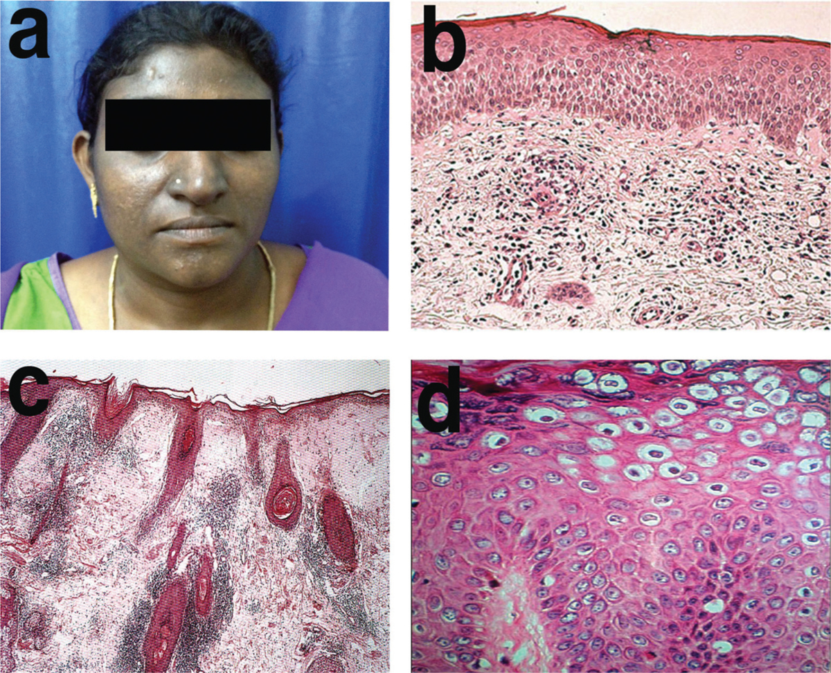 Figure 4: (a) Seborrhoeic melanosis (SM) as seen clinically in our participants. (b) Histology of majority patients diagnosed with SM demonstrating superficial dermal infiltrates of lymphocytes (H&E ×100). (c) Histology of one patient diagnosed clinically as SM with microscopic features suggestive of DLE (H&E ×100). (d) Histology of one patient diagnosed with SM depicting koilocytes in the epidermis on microscopy (H&E ×200)