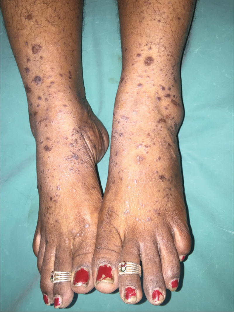 A clinicopathologic study of lichen planus at a tertiary health care ...