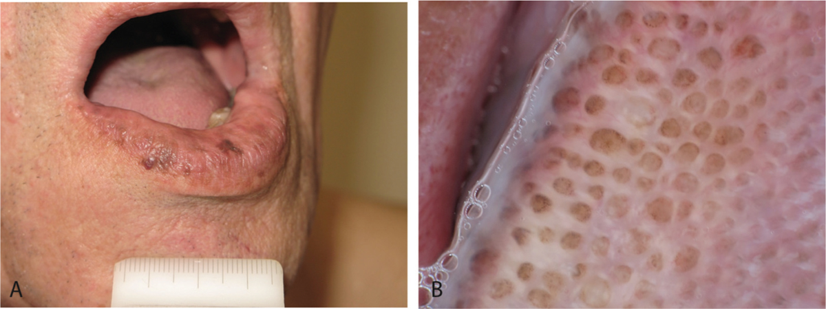Figure 9: Clinical and dermoscopy features of oral melanosis. (a) Brown  macules on the vermilion border of the lower lip in a 35-year-old woman.