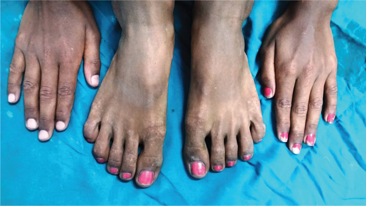 Figure 2: Multiple symmetrically distributed hypopigmented and hyperpigmented macules over hands and feet in a patient with acropigmentation of Dohi