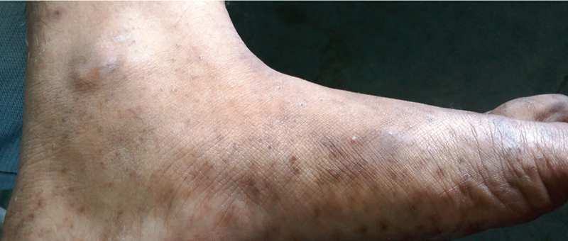 Figure 6: A patient of lichen planus with postinflammatory macules on the plantar surface of the foot extending over ankle joint