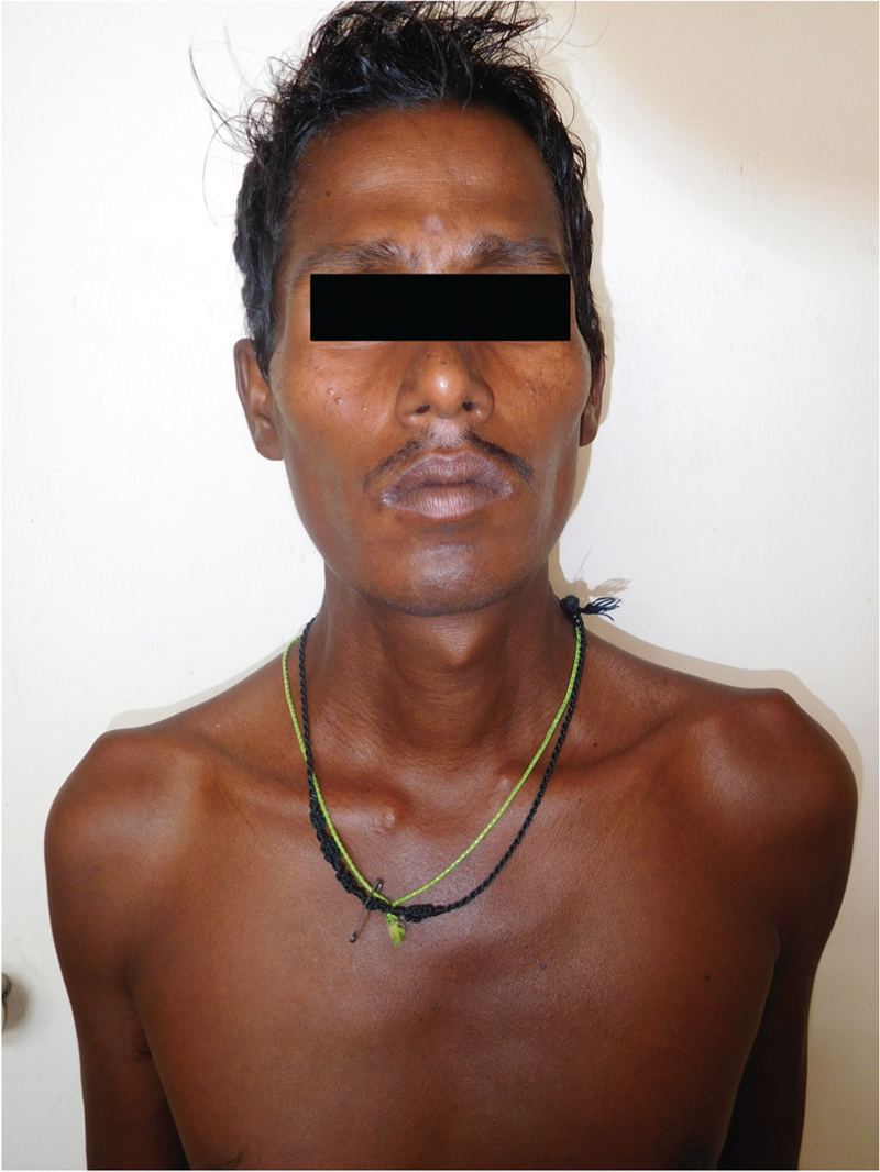 Figure 3: Coppery-red pigmentation due to clofazimine in a patient with leprosy