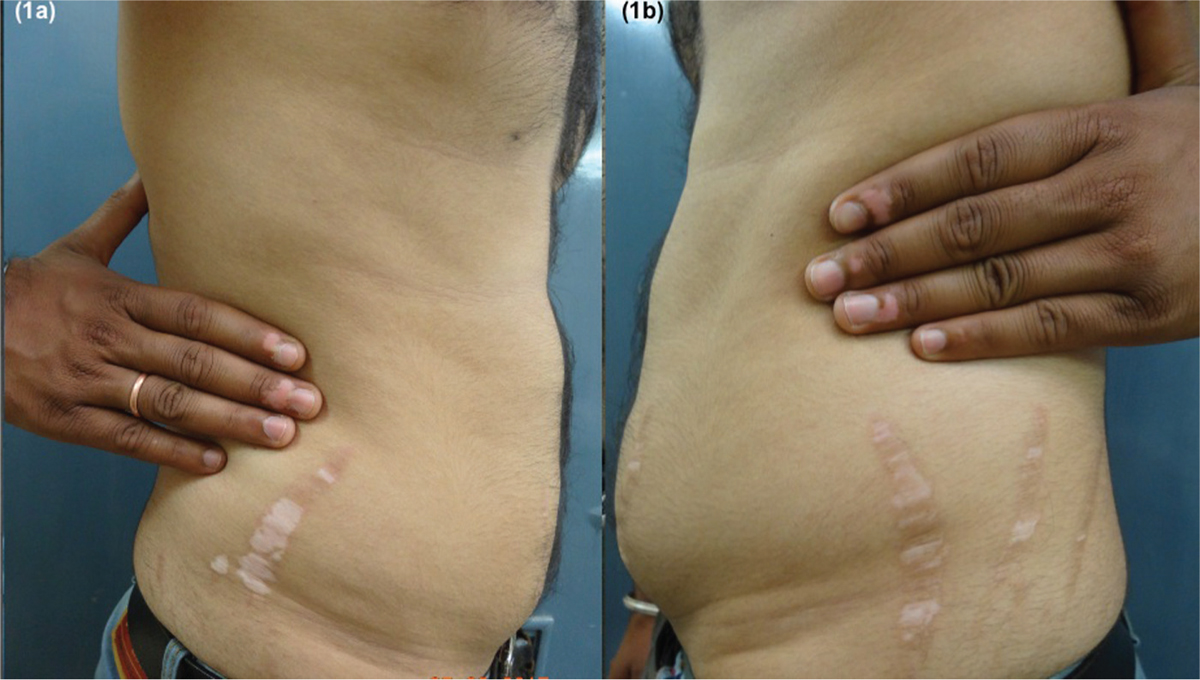 Figure 1: (a and b) Linear depigmented streaks of varying widths confined precisely to atrophic striae alba on the lateral aspect of the abdomen. Acral vitiligo on the tips of the fingers is visible