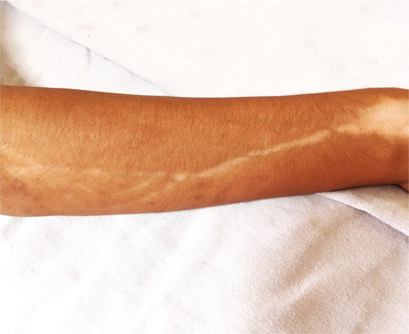 Steroid-induced perilymphatic hypopigmentation: Response to