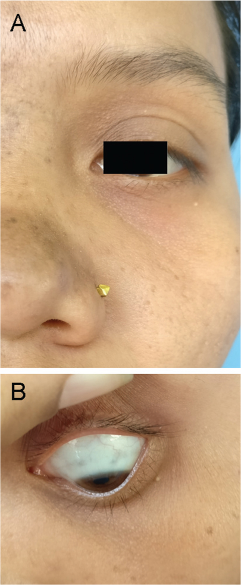 Figure 2: (a) A few scattered brown macules on alae and dorsum of left nose and left malar region. (b) A few bluish discolored spots on the sclera of left eye