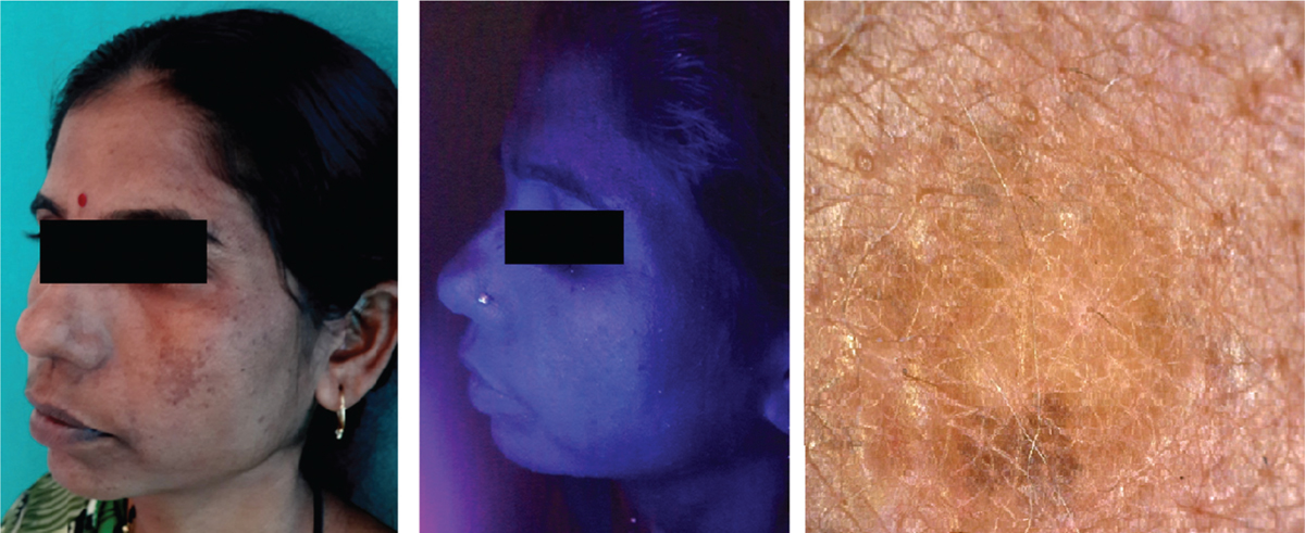 Figure 2: Correlation between clinical, Wood's lamp (no accentuation of pigment), and dermatoscopic findings (grayish brown or grayish black pigmentation with irregular pigment network) in a patient with clinical dermal melasma