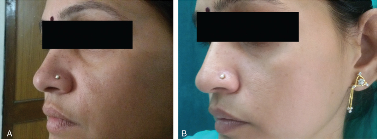 Figure 3 (a) The left side which was treated with TA at baseline. (b) The left side which was treated with TA at 12 weeks