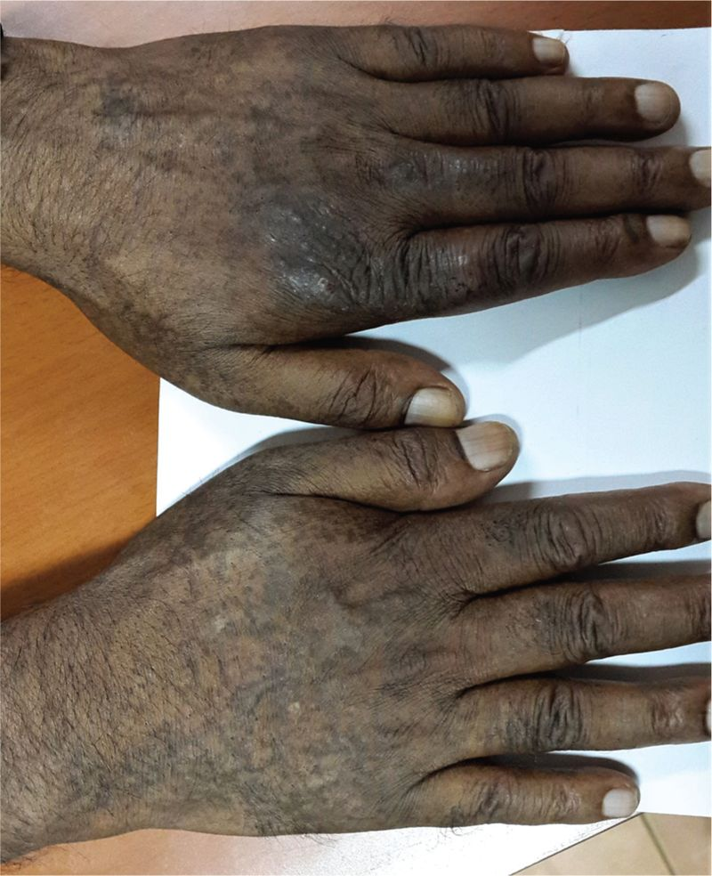 Figure 3 (a) Reticulate hyperpigmentation over dorsa of both hands in a patient with Reticulate Acropigmentation of Kitamura and (b) Palmar pits and interrupted dermatoglyphics in the palms of the same patient. Pigmented macules can also be seen on the volar aspects of the wrists.