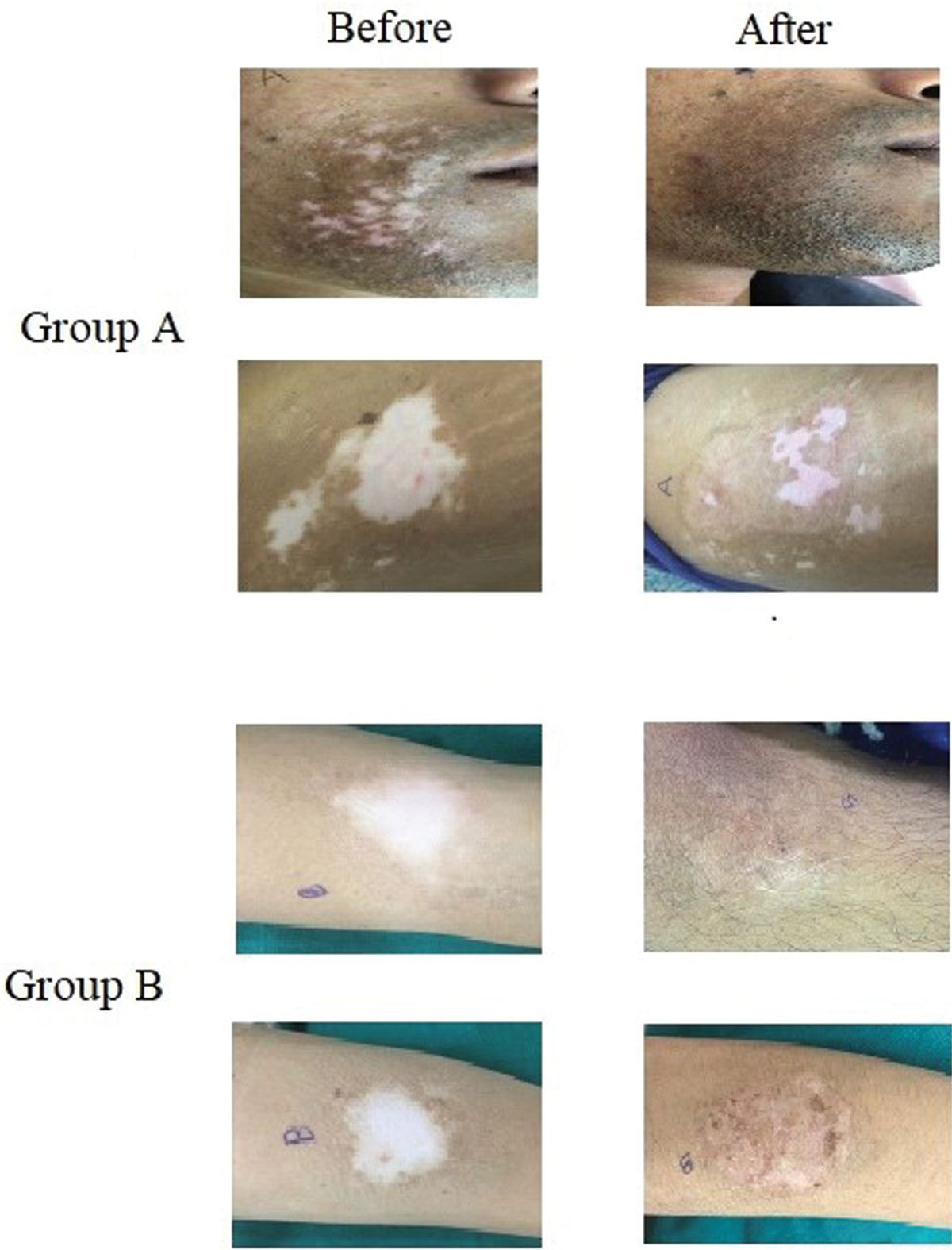 Figure 3 Preoperative and postoperative repigmentation in both the groups.