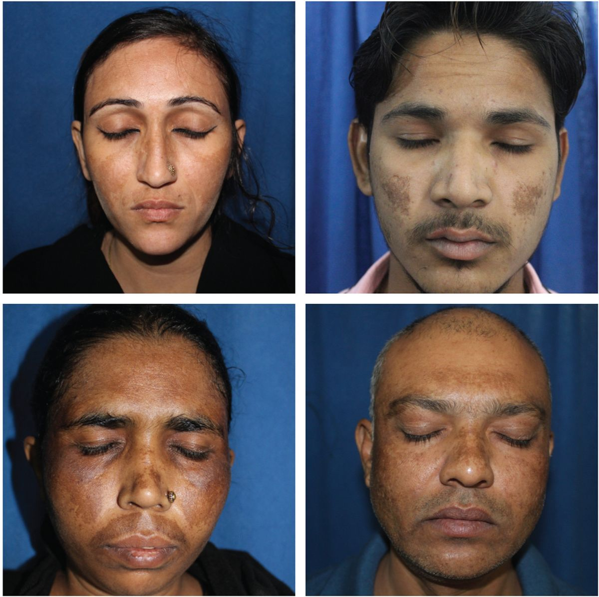 Figure 1 Centrofacial distribution of lesions in melasma.